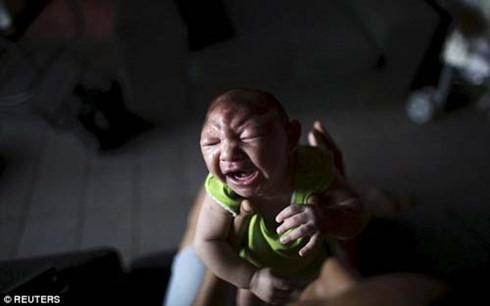 Hơn 508 trẻ sơ sinh bị đầu nhỏ ở Brazil
